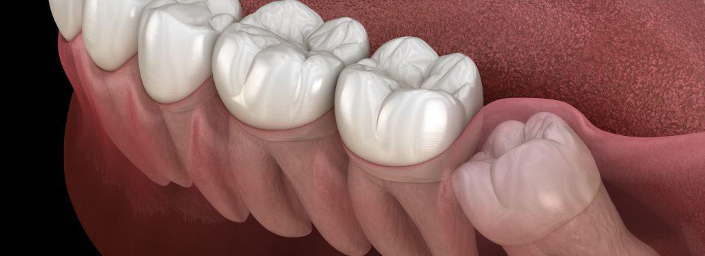 dente do siso nascendo