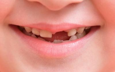 Coleta de Células-tronco para Crianças: Entenda tudo sobre!